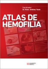 ATLAS de HEMOFILIA